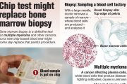 Did You Know? - Chip test might replace bone marrow biopsy