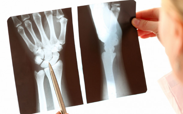 Roundtable: Radiography